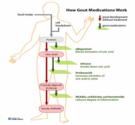 How Gout Medications Work media