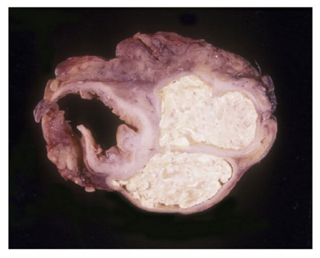 Visceral Gout in Colon