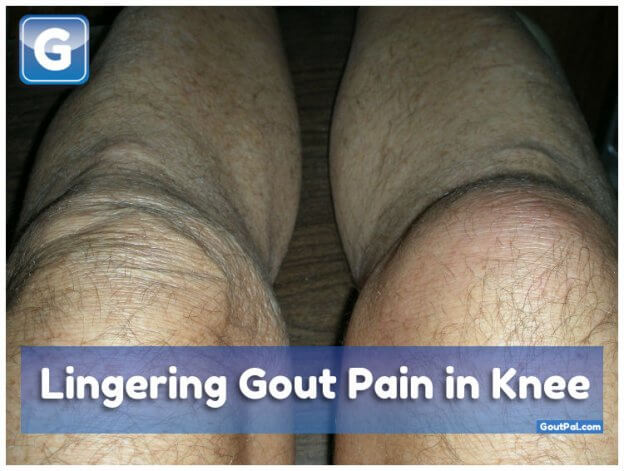 Lingering Gout Pain in Knee
