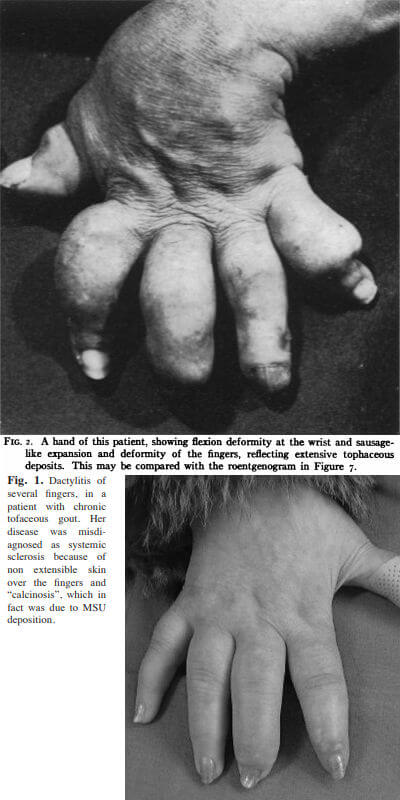 "Gout with ""sausage-finger"" photos"